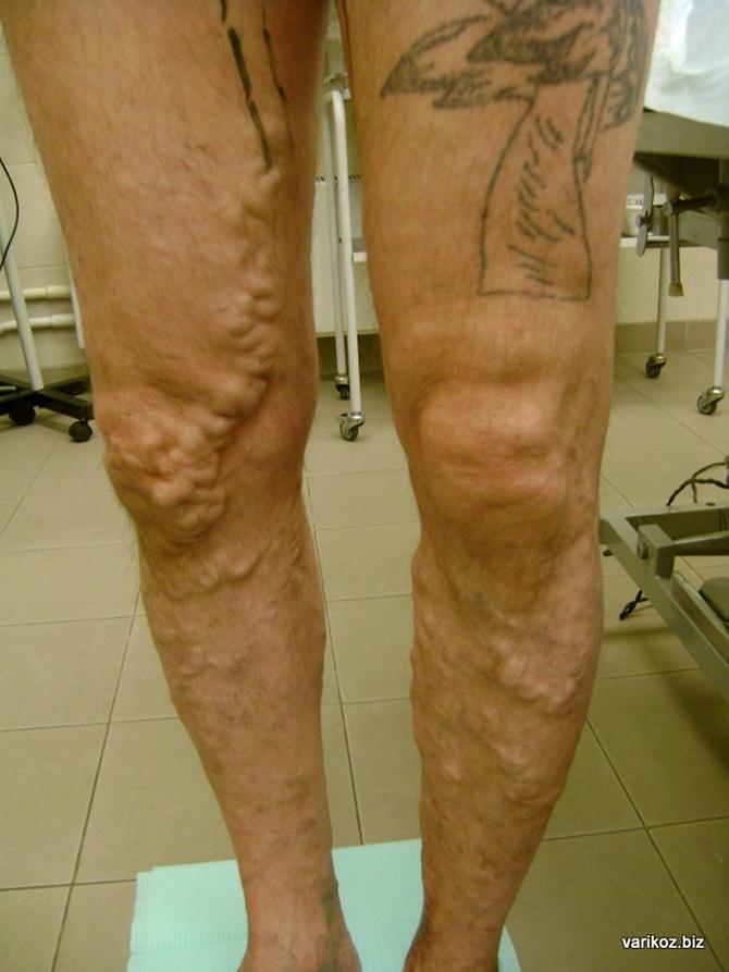 Лечение варикоза на ногах лазером краснодар